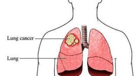 Cáncer de pulmón: síntomas y diagnóstico