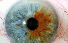 Diagnósticos a través del iris