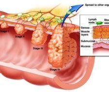 Información básica del cáncer de colon