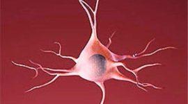 La esclerosis múltiple síntomas