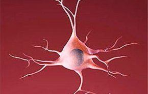 Enfermedades del sistema nervioso: La esclerosis múltiple