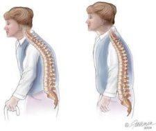 Mujeres y hombres son afectados por la osteoporosis