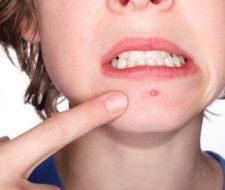 Hábitos higiénicos para el tratamiento del acné