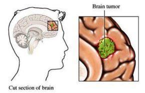 ¿Qué es un tumor cerebral?