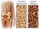 La actividad física y la osteoporosis