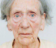 Sería posible pronosticar de forma temprana el Alzheimer
