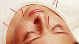 Solución a los trastornos menstruales con acupuntura
