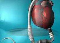 Primer paso del corazón artificial español