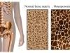 El alcohol y el tabaco provocan osteoporosis