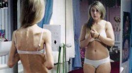 Las dietas y los trastornos alimenticios