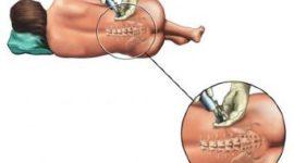 La epidural y los problemas de incontinencia