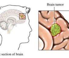 Los tumores son la primera causa de muerte en Madrid