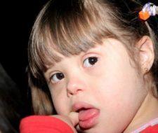 Estudiarán el envejecimiento en pacientes con síndrome de Down
