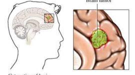 Tumor cerebral | Síntomas