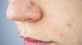 Tratamientos contra el Melasma