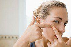 El acné en el embarazo