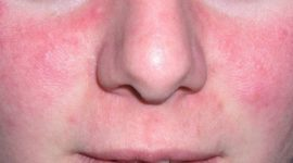 La piel rosácea