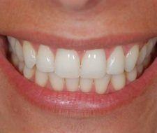 Tratamiento casero para blanqueamiento dental
