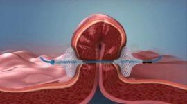 Cirugía Endoluminal para poner fin a la obesidad