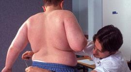Aumentan los casos de obesidad