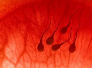 Hematospermia