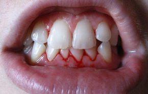 ¿Qué puedes hacer cuando tienes gingivitis?