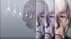 Descubierta la primera mutación que protege del Alzhéimer