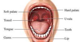 Tratamiento contra la Campanilla o Úvula Inflamada