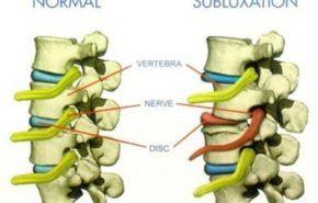 ¿Qué es una subluxación o pinzamiento?
