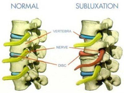 Qué es una subluxación o pinzamiento