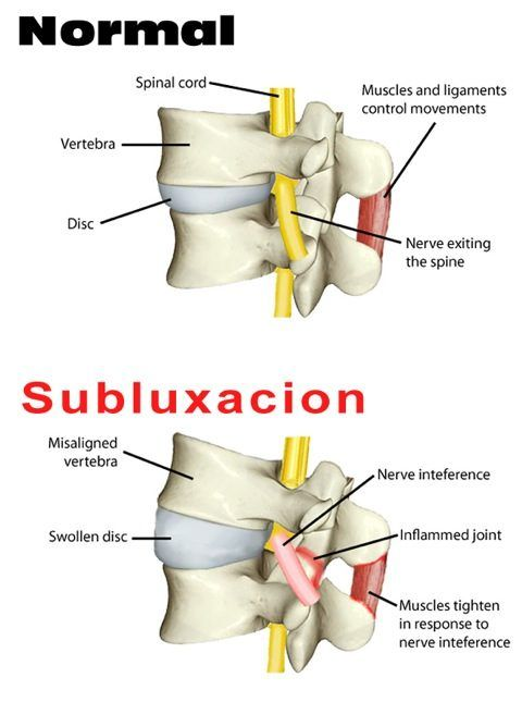 Puede dar la columna vertebral en la garganta