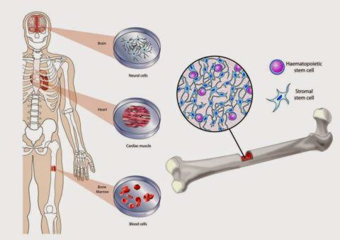 artritis multiple