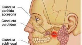 Sialoadenosis o sialosis