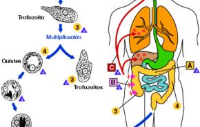 Infección por amebas| qué hacer