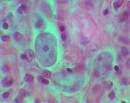 Infección por amebas|qué hacer