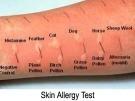 ¿En qué consisten las pruebas de alergia?