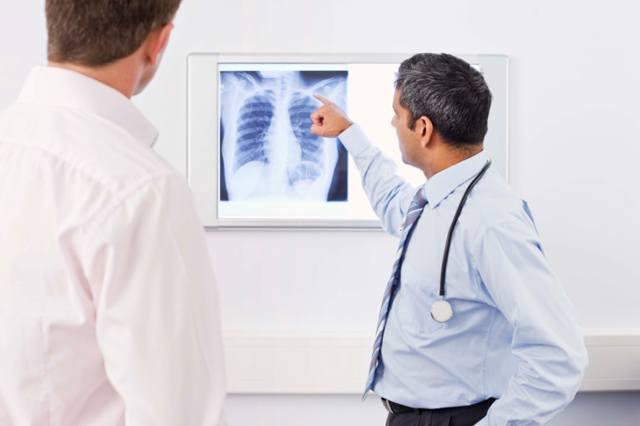 fracturas-de-costillas-radiografia-medico