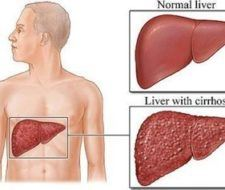 Cirrosis hepática, causas y síntomas