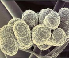 La enfermedad de las encías y la artritis reumatoide tienen bacterias en común