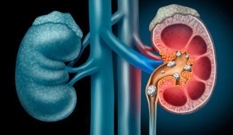 Enfermedad renal cronica causas