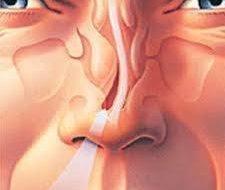 Tabique de la nariz desviado | Síntomas, consecuencias y tratamiento