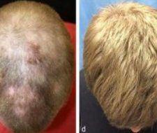 Tratamiento para la alopecia   un fármaco contra la artritis