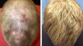 Tratamiento para la alopecia | un fármaco contra la artritis