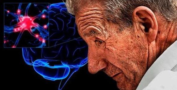causas y sintomas de la enfermedad de Parkinson.jpg