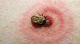 Enfermedad de Lyme causas, síntomas y tratamiento