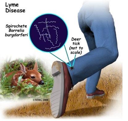 enfermedad de lyme 6