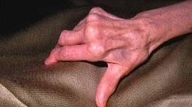 Artritis reumatoide, tratamiento, causas…