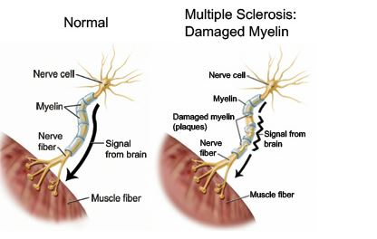 Esclerosis múltiple síntomas 2