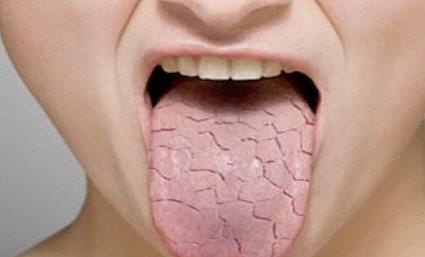 El síndrome de la boca seca