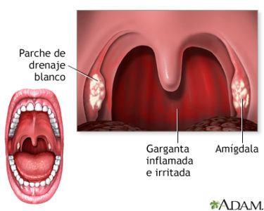 campanilla-inflamada-infeccion